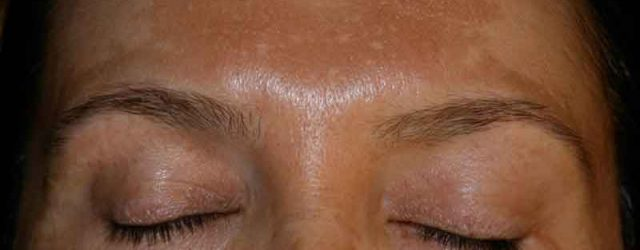 Amazing !!! This Natural Ingredient Deletes Dark Circles around the Eyes