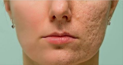 Brush This Mixture in Scars, Wrinkles and Spots and Enjoy The Results